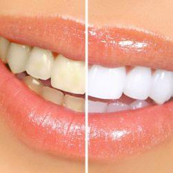 extra bianco kit sbiancante per denti