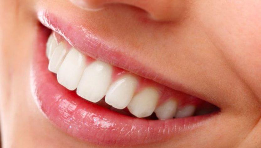 smile ready mascherina dentale
