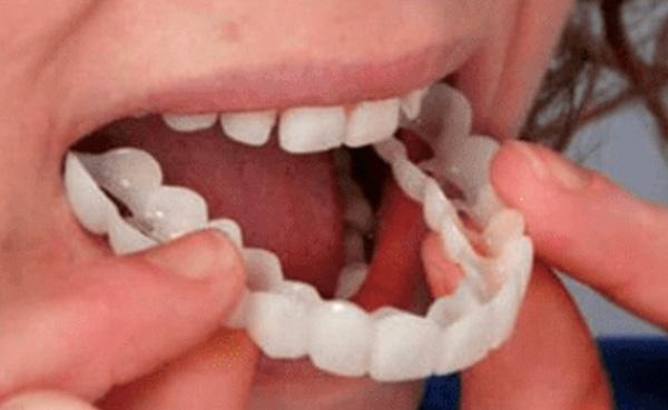 smile ready maschera dentale