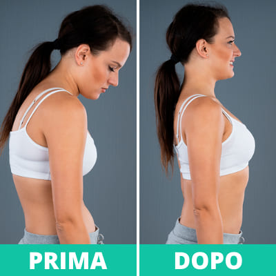 ok shoulder evolution opinioni